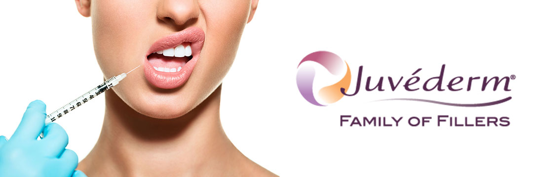 15% отстъпка за уголемява е на устни