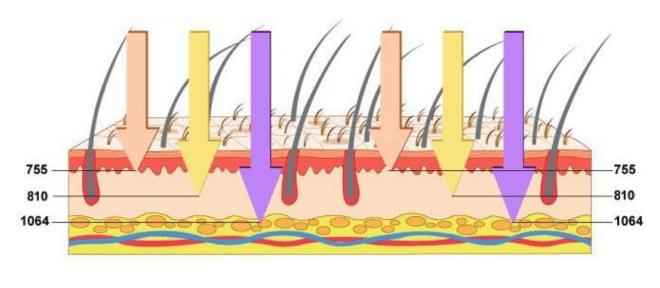 Лазерна епилация с професионален диоден лазер 755nm, 808nm и 1064nm